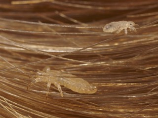 Facts About Lice